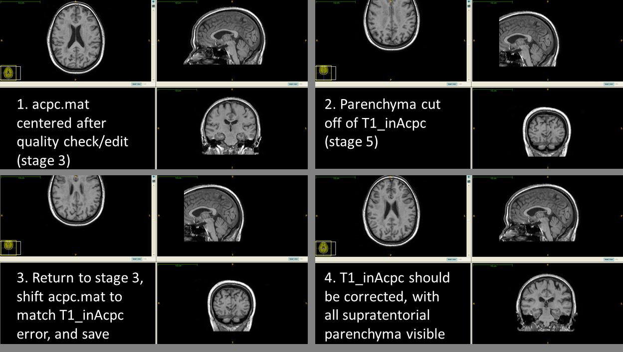 Stage 5 Anatomical Landmarking Sabre 2 0 0 Documentation